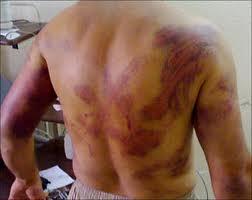 الدعوة  للتدخل لوقف جرائم القوات الحكومية ضد العراقيين