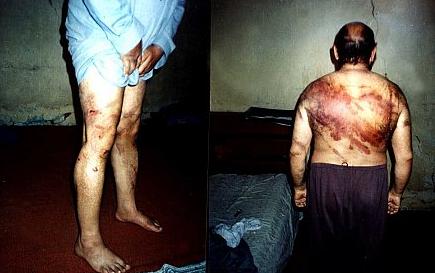 منظمة حقوقية تكشف عن عمليات إعدام وتعذيب حتى الموت بحق المعتقلين في السجون العراقية