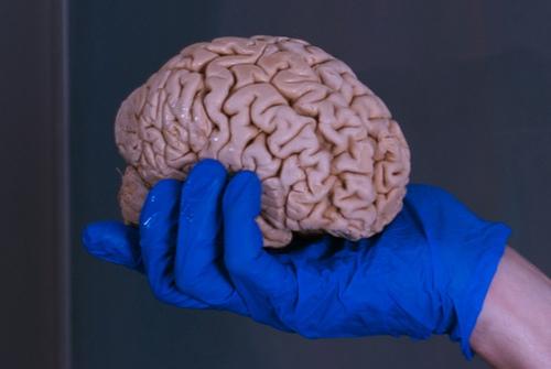 تخصيص 100 مليون دولار لتمويل ابحاث متطورة للمخ البشري
