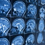الذكاء الصناعي والكشف المبكر عن ألزهايمر