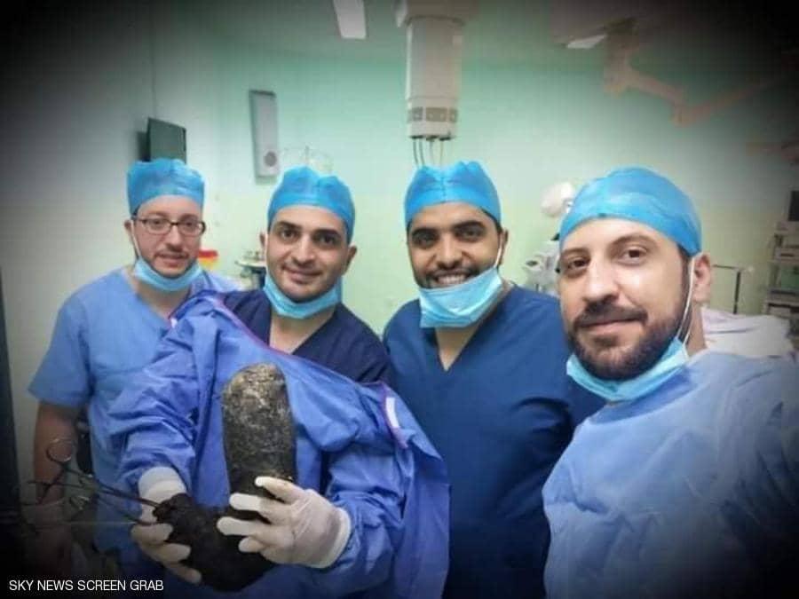 """استخراج كتلة شعر """"ضخمة"""" من بطن فتاة أردنية بعملية نادرة"""